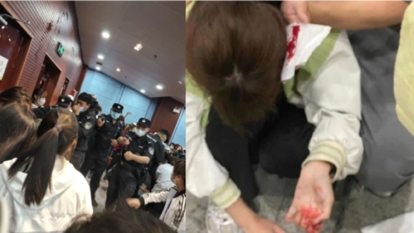 学生维权遭警方暴力镇压,多人头部受伤流血。(图片来源:微博)
